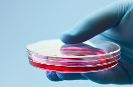 Giving stem cells