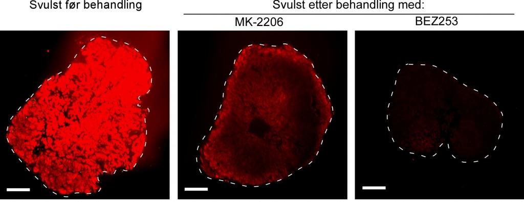 Rødfargen viser aktiviteten til PI3K signalveien i svulsten hos mus.