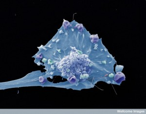 Breast cancer cell. Scanning electron micrograph by Anne Weston/Wellcome Images.