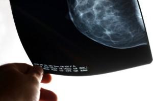 Mammografibilde
