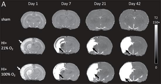 MR bilde av hypoksisk-iskemisk hjerneskade