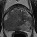 Målrettet MR-veiledet biopsi
