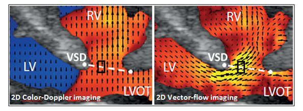 bildet viser forskjell mellom fargedooppler og vector-flow-avbildning