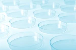 petriskåler. Illustrasjonsfoto: iStock