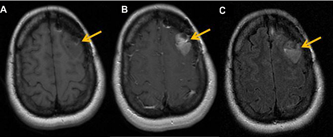 Conventional MR imaging of glioblastoma