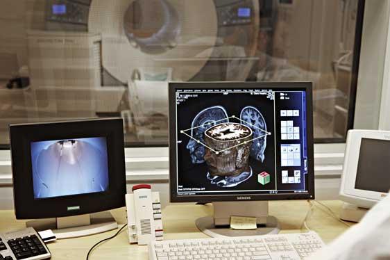 MR-bilde av en hjerne