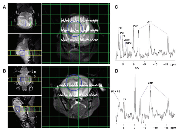 MR spectroscopy provides information additional to conventional MRI