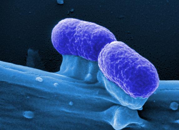 E.coli_STEC