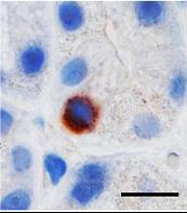 Bilde av et vevssnitt fra mageslimhinnen hos menneske viser at ASPM-cellene (brunfarge) ligger som enkeltceller innimellom de andre slimhinnecellene (Foto: Ingunn Bakke).