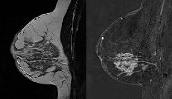 MR bilde av et bryst med tumor. Bildet til venstre viser brystets anatomi med fettvev i lysgrå og brystvev i mørkgrå. Bildet til høyre viser samme bryst, men her er det brukt et kontrastmiddel som gjør at tumor lyser opp i hvitt. Figur fra Jose Teruel, MR Cancer gruppen.