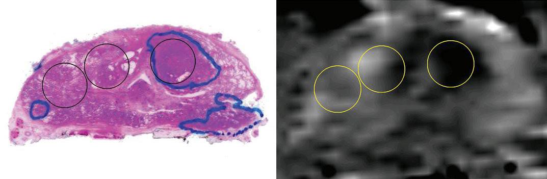 Snitt og MR bilde av prostata.
