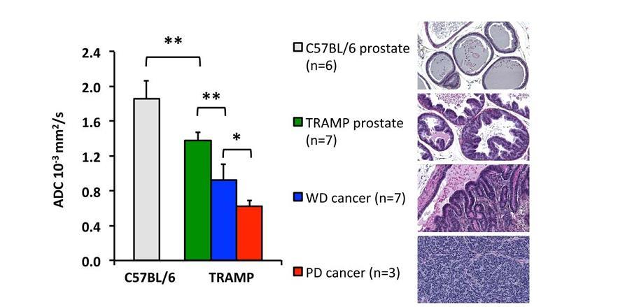 Bilder som viser gradvis utvikling av prostatakreft