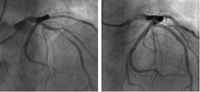 Angiogram. Image: Asbjørn Støylen, NTNU