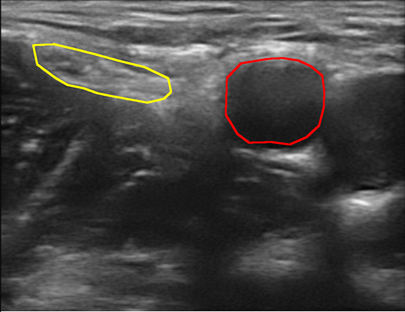 The femoral nerve (yellow) and femoral artery (red).