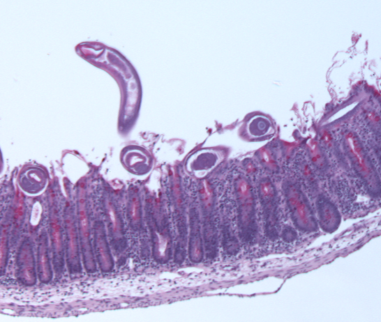 Trichuris worms