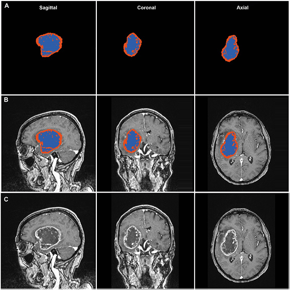 MRI images of glioma segmentation