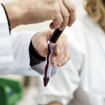 Benmargsprøve i reagensrør.