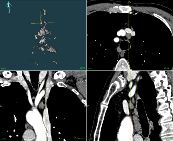 CT images identifying lymph nodes.