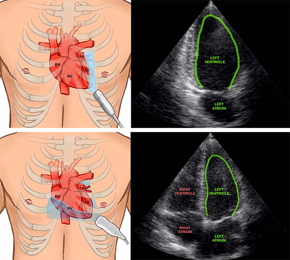 Illustrations of heart and ultrasound image of heart.