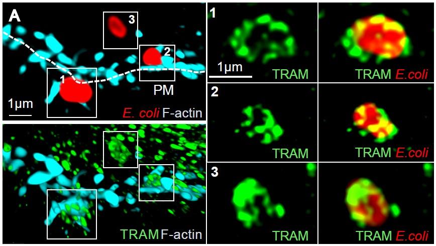 Mikroskopbilde av TRAM proteiner røde og grønne