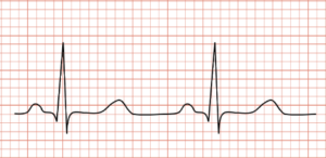 Readings of a EKG