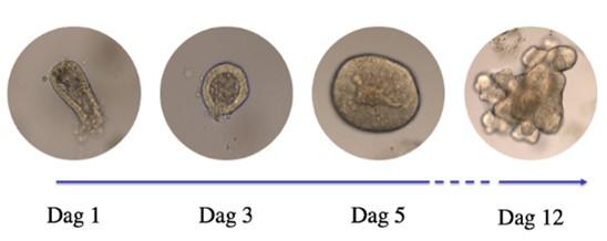 """Fire bilder som viser hvordan """"minitarmer"""" dyrkes frem fra stamceller."""