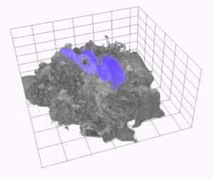 Denne tredimensjonale figuren viser ei immuncelle (i grått) som fagosyterer tuberkelbakteriar (i lilla)